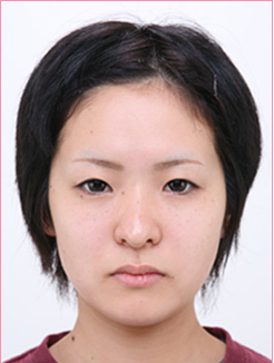 ◆二重【埋没法】の症例写真[ビフォー]