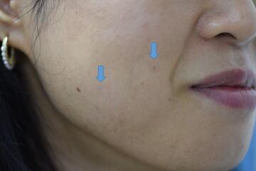 みずほクリニックのほくろ除去・あざ治療・イボ治療の症例写真[アフター]