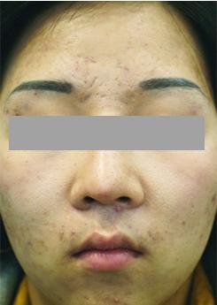 ノエル銀座クリニックのシミ治療(シミ取り)・肝斑・毛穴治療の症例写真[ビフォー]