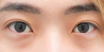 東京イセアクリニック 銀座院の目・二重整形の症例写真[アフター]