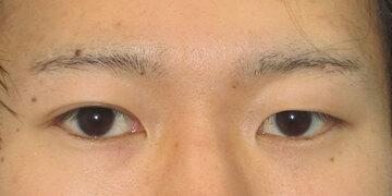 湘南美容クリニック 高崎院の目・二重の整形の症例写真[ビフォー]