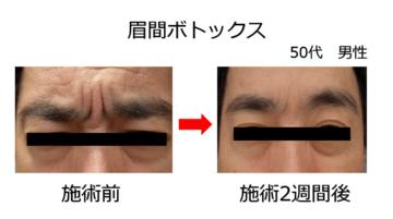 今泉スキンクリニック六本木のその他の美容皮膚科治療の症例写真