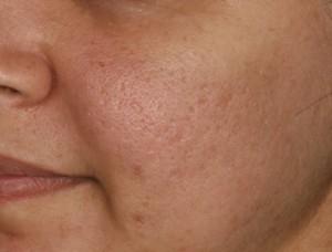シンシアガーデンクリニック太田院(女性専用クリニック)のニキビ治療・ニキビ跡の治療の症例写真[アフター]
