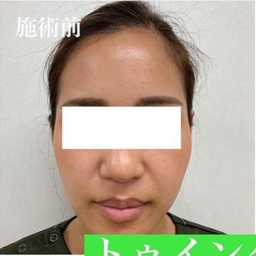 銀座長瀬クリニックのニキビ・ニキビ跡の治療の症例写真[ビフォー]