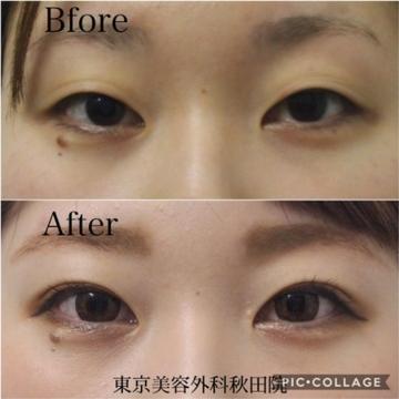 東京美容外科の目・二重整形の症例写真