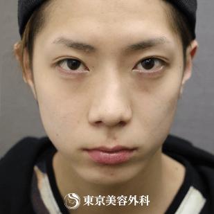 東京美容外科の目元の整形、くま治療の症例写真[ビフォー]