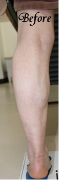 千葉中央美容形成クリニックの痩身、メディカルダイエットの症例写真[ビフォー]