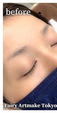 FAIRY ARTMAKE フェアリーアートメイク 新宿院のアートメイクの症例写真[ビフォー]
