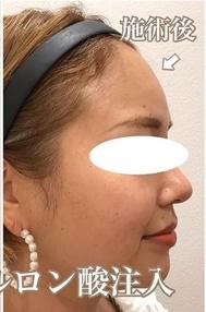 西宮SHUHEI美容クリニックの輪郭・顎の整形の症例写真[アフター]