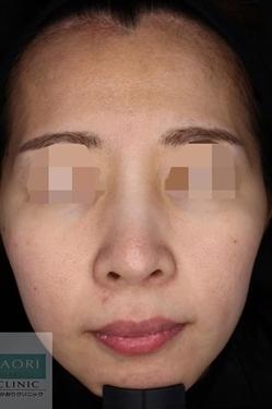皮フ科 かわさきかおりクリニックのニキビ治療・ニキビ跡の治療の症例写真[アフター]