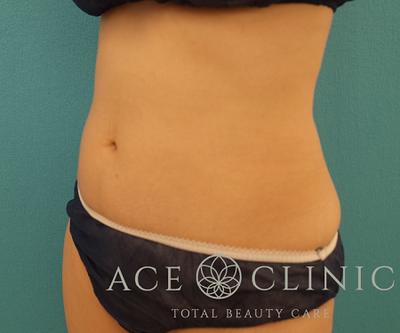 クールスカルプティングによる腹部の部分痩せの症例写真[アフター]