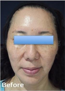 S.T style クリニック (エスティスタイルクリニック)のシミ治療(シミ取り)・肝斑・毛穴治療の症例写真[ビフォー]