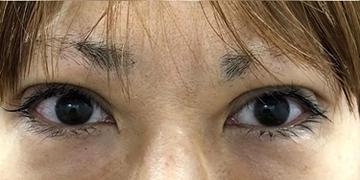 ルラ美容クリニックの目・二重の整形の症例写真[アフター]