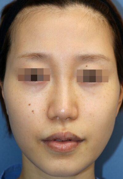 鼻中隔延長術+鼻背部軟骨移植術手術後6ヶ月の症例写真[ビフォー]