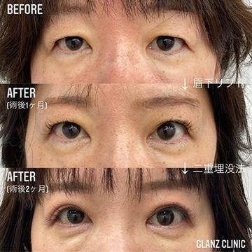 GLANZ CLINIC (グランツクリニック)の目・二重整形の症例写真