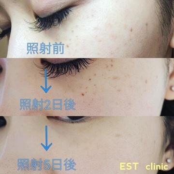 エストクリニックのシミ治療(シミ取り)・肝斑・毛穴治療の症例写真