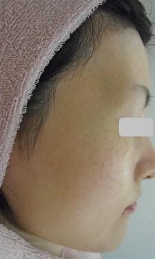 美白脱毛のモニターの症例写真[アフター]