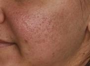 シンシアガーデンクリニック太田院(女性専用クリニック)のニキビ治療・ニキビ跡の治療の症例写真[ビフォー]