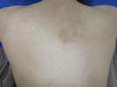 背中の医療レーザー脱毛の症例写真[ビフォー]