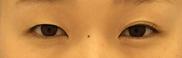 湘南美容クリニック福岡院の目・二重の整形の症例写真[ビフォー]