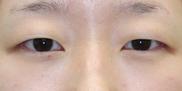 大塚美容形成外科の目・二重の整形の症例写真