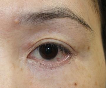 タウン形成外科クリニックの目元の整形、くま治療の症例写真[ビフォー]