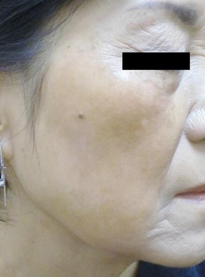 シミ治療:Q-YAGレーザーの症例写真[アフター]