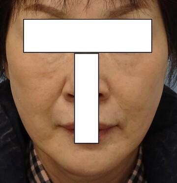 みらいビューティークリニック和歌山の顔のしわ・たるみの整形の症例写真[アフター]