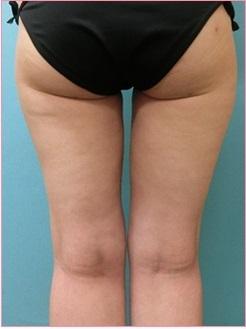 脂肪吸引【太もも】の症例写真[アフター]