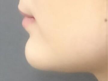 TCB 東京中央美容外科 京都院の顔の整形(輪郭・顎の整形)の症例写真[ビフォー]