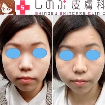 しのぶ皮膚科の顔の整形(輪郭・顎の整形)の症例写真