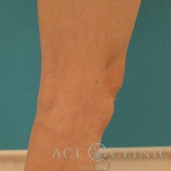 クールスカルプティングによる膝上の部分痩せの症例写真[アフター]