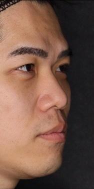 SELECT CLINIC (セレクトクリニック)の鼻の整形の症例写真[ビフォー]