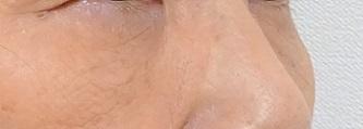 目の下のふくらみ取り(脂肪取り)パーフェクト[アフター]