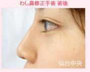 仙台中央クリニックの鼻の整形の症例写真[アフター]