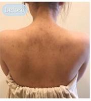 とりい皮膚科クリニックのニキビ・ニキビ跡の治療の症例写真[ビフォー]