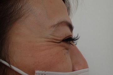 ゆきおかクリニックの顔のしわ・たるみの整形(リフトアップ手術)の症例写真[ビフォー]