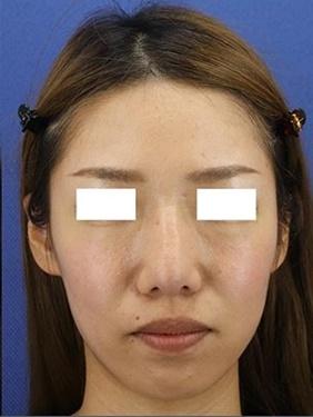 銀座長瀬クリニックの鼻の整形の症例写真[アフター]