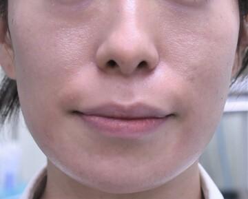 心斎橋コムロ美容外科クリニックの輪郭・顎の整形の症例写真[アフター]