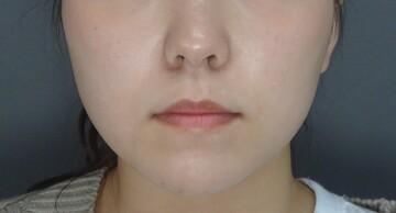 TCB 東京中央美容外科の顔のしわ・たるみの整形(リフトアップ手術)の症例写真[アフター]