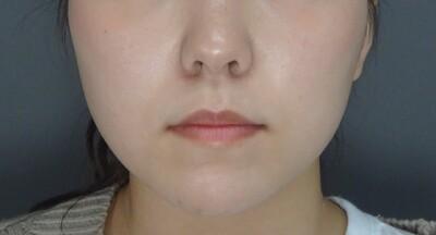 TCB式小顔美肌再生 クリスタルの症例写真[アフター]