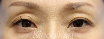樹のひかり 形成外科・皮ふ科の目元整形・クマ治療の症例写真[ビフォー]