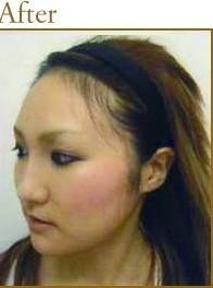 頬下顎骨形成術の症例写真[アフター]