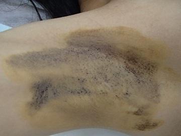 心斎橋フェミークリニックのわきが手術・多汗症治療の症例写真[ビフォー]