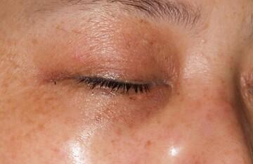 タウン形成外科クリニックのシミ治療(シミ取り)・肝斑・毛穴治療の症例写真[ビフォー]