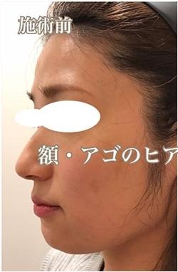 額・アゴのヒアルロン酸注入の症例写真[ビフォー]