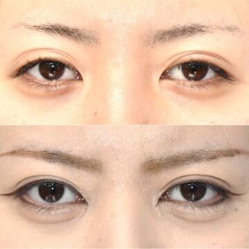 の目・二重整形の症例写真