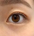 湘南美容クリニック 武蔵小杉院の目・二重整形の症例写真[アフター]