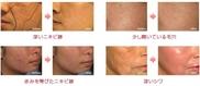 メディエスクリニックのニキビ治療・ニキビ跡の治療の症例写真