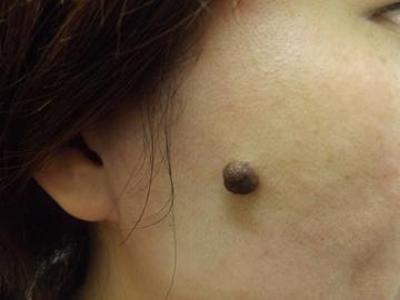 西新宿杉江中央クリニックのホクロ除去・あざ治療・イボ治療の症例写真[ビフォー]